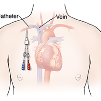 Central Venous Access Catheters