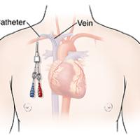 Central Venous Access Catheters